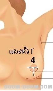 การผ่าตัดเสริมหน้าอกแผลจะมี 3-4 แบบ